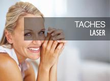 Traitement au laser taches visage